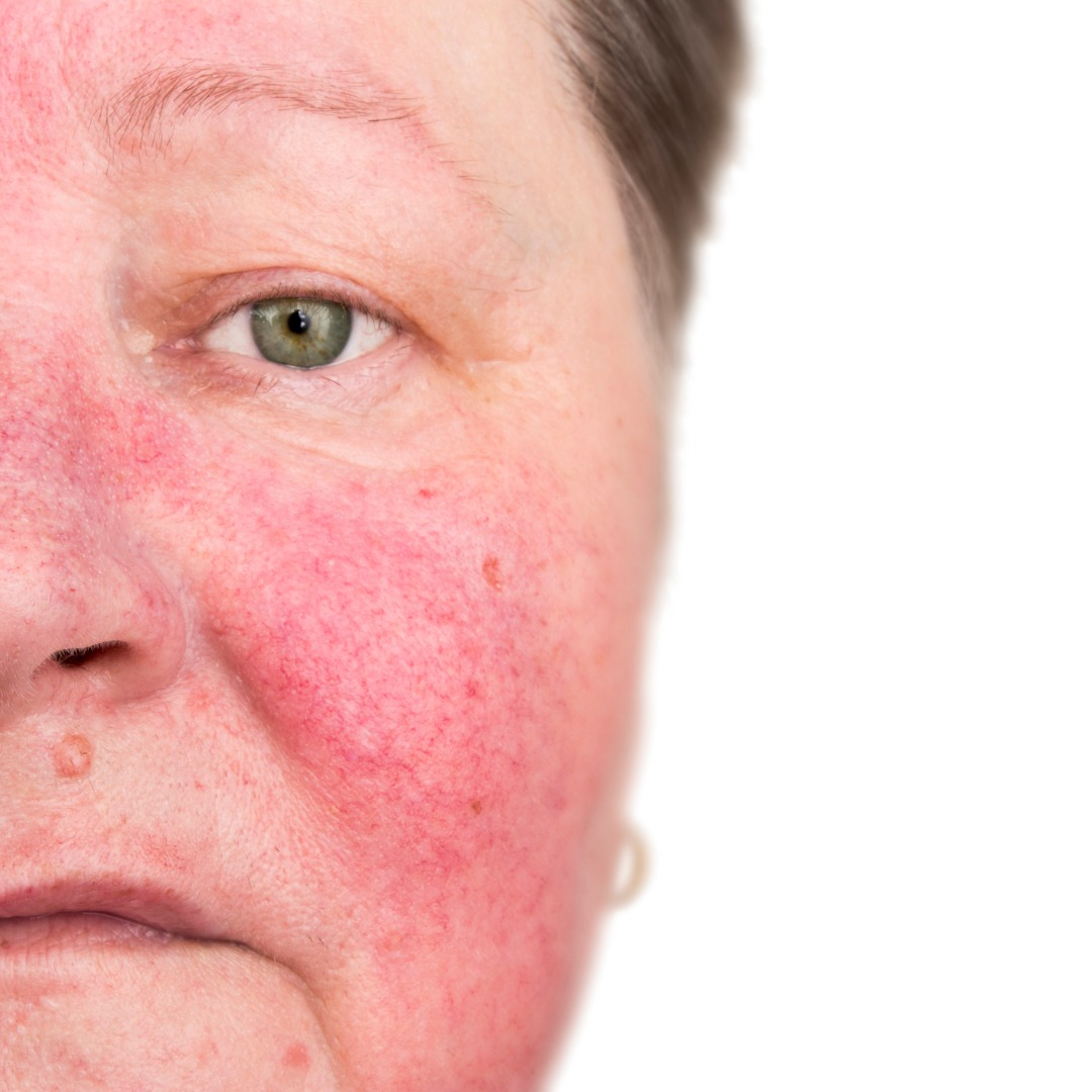 Rosacea Archives Dermalution